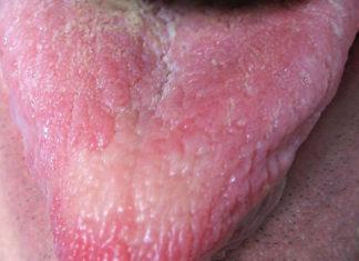 lengua amarilla causas, sintomas y tratamientos