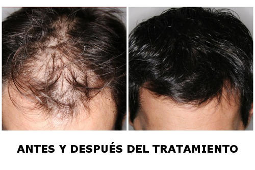 alopecia hombres
